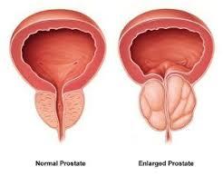 Prostalgene - para próstata - preço - capsule - efeitos secundarios