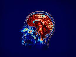 Neurocyclin - pomada - como usar - como aplicar
