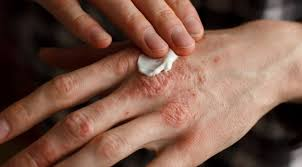 Sanidex - para problemas de pele - creme - onde comprar - opiniões